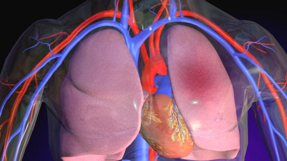 Lungenembolie: Symptome, Anzeichen, Ursachen, Therapie, Behandlung und Folgen