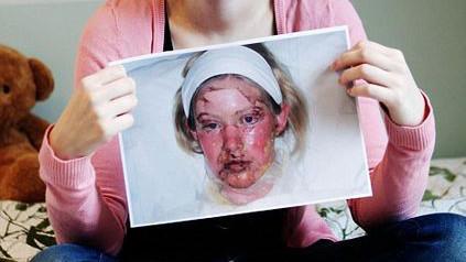 Lyell-Syndrom: Symptome, Ursachen, Behandlung