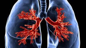 Mukoviszidose: Symptome, Lebenserwartung, Ursachen, Vererbung und Therapie