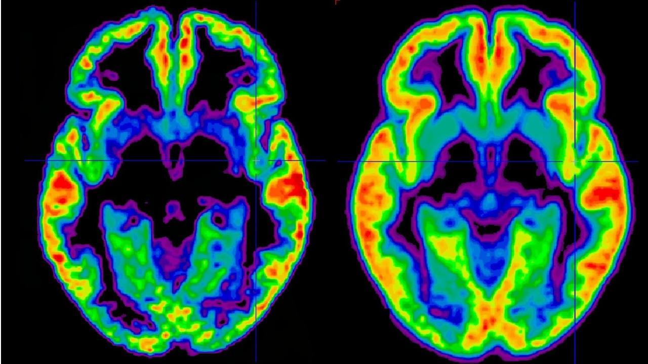 Schizophrenie: Definition, Symptome, Ursachen, Behandlung