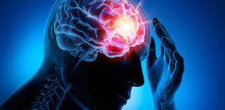 Schlaganfall: Symptome, Anzeichen, Ursachen, Folgen, Test, Therapie und Behandlung