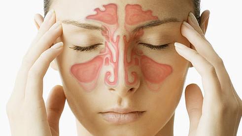 Sinusitis: Definition, Ethmoidalis/ Maxillaris/ Frontalis, Symptome, Hausmittel, Behandlung