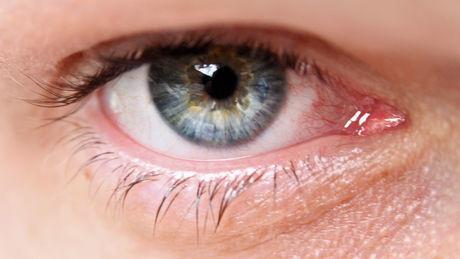 Was ist Grüner Star (Glaukom)? Definition, Symptome, Behandlung, OP, Ursachen und Therapie