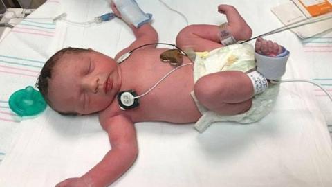 Lynlee Boemer kam zweimal zur Welt... Sie ist ein medizinisches Wunder!