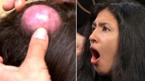 Diese Frau hat seit 20 Jahren eine Beule auf dem Kopf: Seht euch an, was da drin ist!