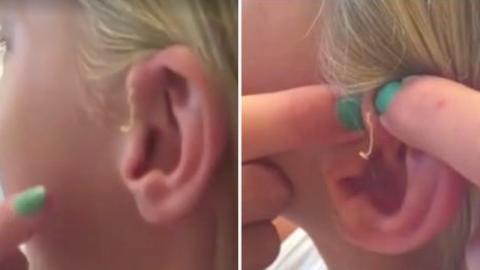 Mädchen hat seit 6 Jahren einen Pickel am Ohr: Dann berührt sie ihn zum ersten Mal