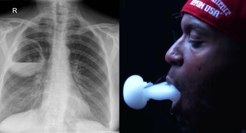 E-Zigaretten schneiden im Vergleich mit normalen Zigaretten schlecht ab