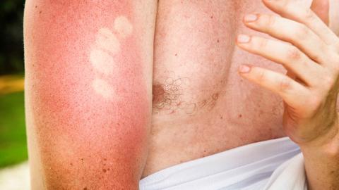 Sonnenbrand: Dieses Beautyprodukt für Männer hilft richtig gut, um ihn loszuwerden