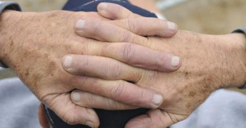 Mit zwei natürlichen Zutaten wirst du Altersflecken ruckzuck los