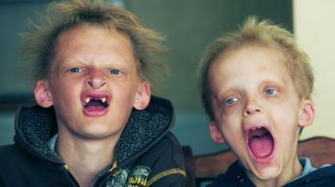 Die Cullen-Brüder: Wegen einer seltenen Krankheit leben sie wie Vampire