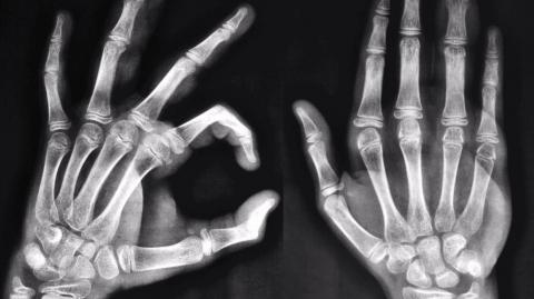 Beunruhigende Veränderungen der Hand durch Smartphones