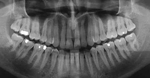 Einer der Auslöser von Alzheimer könnte sich in eurem Mund befinden