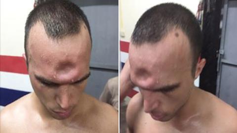 Muay Thai: Ein französischer Kämpfer erleidet eine gewaltige Kopfverletzung
