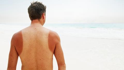 Sonnenbrand: 10 natürliche Hausmittel