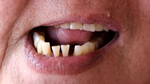 So wirken sich schiefe Zähne auf deine Gesundheit aus