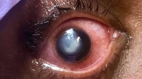 Das passiert, wenn man mit seinen Kontaktlinsen einschläft