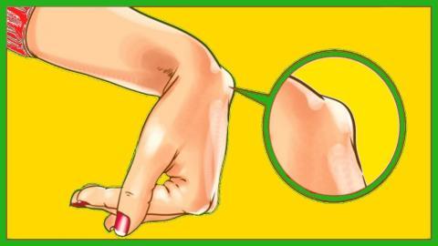 Wenn du so eine Beule am Handgelenk hast, solltest du dir Sorgen machen!