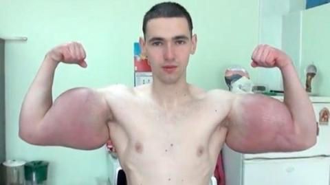 Russe spritzt sich Synthol in die Arme: Jetzt werden die Nebenwirkungen sichtbar