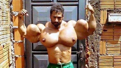 Valdir und seine mit Synthol aufgespritzten Muskeln machen Angst