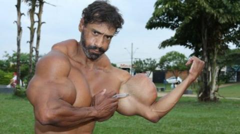 """Valdir, der mit Synthol aufgeblasene, brasilianische """"Bodybuilder"""", muss nun mit den Folgen seines Syntholmissbrauchs kämpfen! Echt abartig!"""