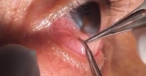 Arzt entfernt 15 cm langen Wurm aus Auge seines Patienten