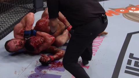 Unschöne Bilder: Der Kampf zwischen Gunnar Nelson und Alex Oliveira endet in einem Blutbad