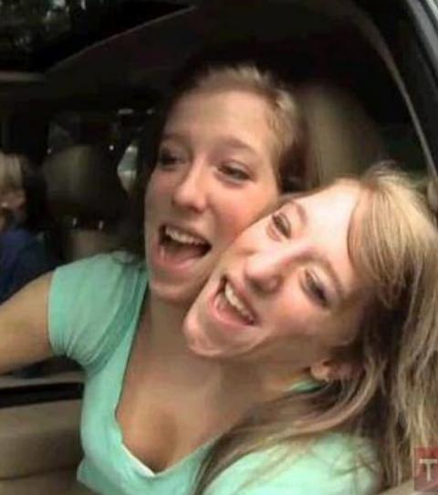 Abigail & Brittany Hensel: Siamesische Zwillinge haben