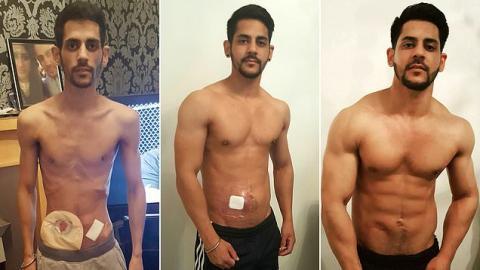 Von 29 Kilo zum Powerlifting: Wie Manny aus einer grausamen Krankheit zurückkam