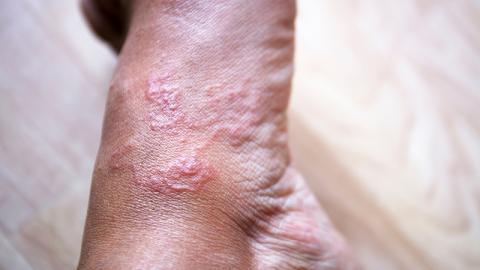 Drakunkulose: Eine beängstigende Krankheit, die nur durch einen Wurm verursacht wird