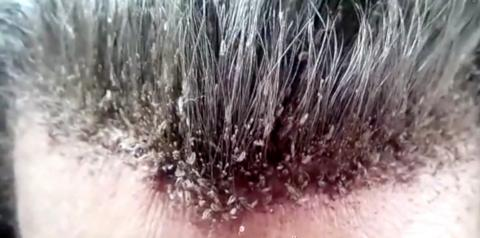 Es wimmelt nur so: Sie hat hunderte Tiere auf dem Kopf