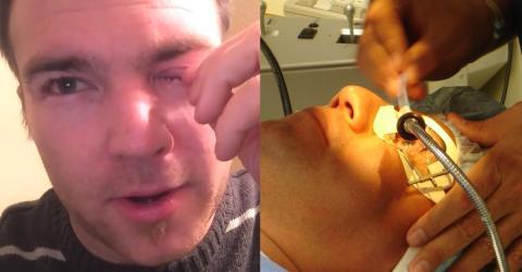 Mann klagt über Juckreiz: Dann findet sein Arzt etwas Unglaubliches in seinem Auge!