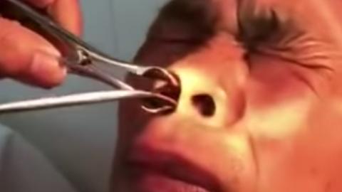 Mann klagt über Schmerzen: Dann zieht ihm der Arzt etwas Unglaubliches aus der Nase