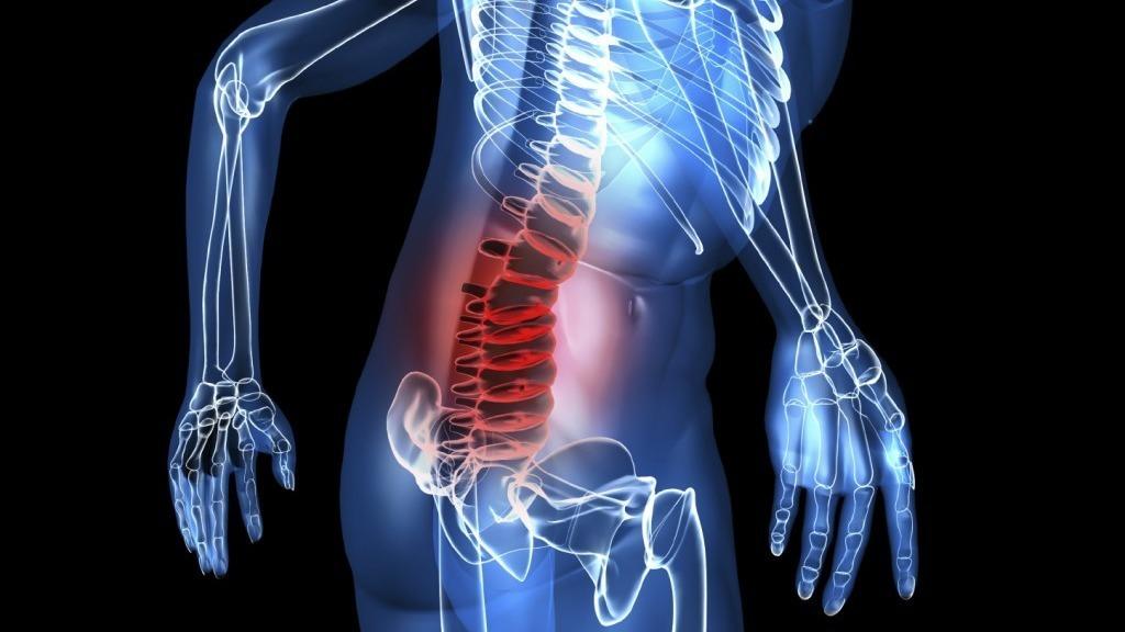 Bandscheibenvorfall: Symptome, LWS, BWS, Behandlung und OP