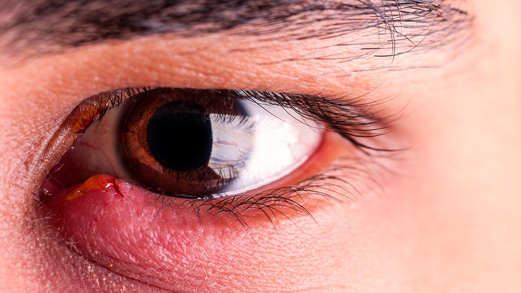 Gerstenkorn am Auge (Hordeolum): Was tun? Behandlung, Dauer, Salbe, Therapie und Symptome