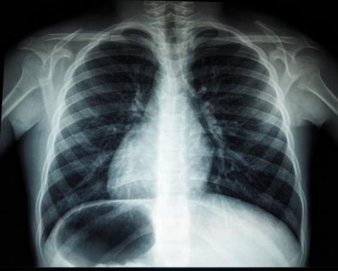 Bei einem Arztbesuch erfährt sie, dass ihr Herz am falschen Fleck sitzt