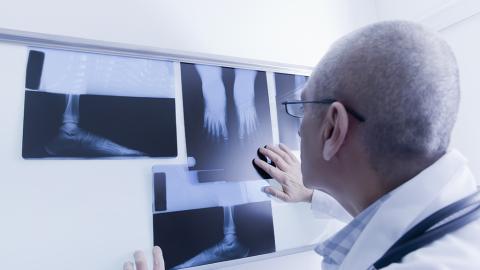 Mann hat plötzlich große Schmerzen im Fuß: Dann entdeckt der Arzt die Ursache
