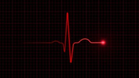 Diese künstliche Intelligenz kann euren Tod vorhersagen, doch die Forscher sind ratlos
