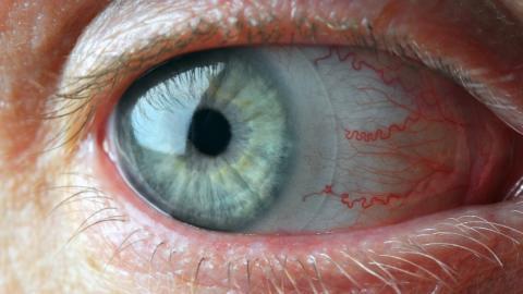 Darum solltest du immer deine Kontaktlinsen vorm Schlafengehen entfernen