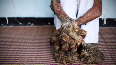 Der Baummann von Java: Seine Krankheit verwandelt ihn in einen Baum