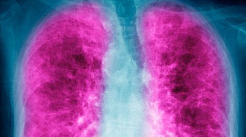 Corona: So wirken sich die Langzeitschäden von Covid-19 auf die Lunge aus