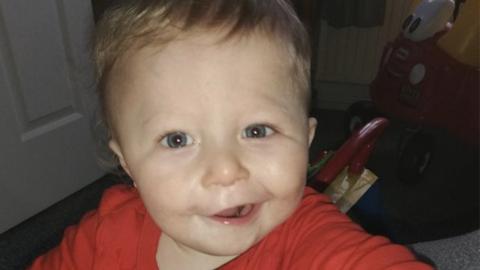 Laut Foto hat ihr Kind einen Schlaganfall: Dann erkennen die Ärzte, was das Kind wirklich hat