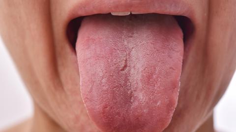 Covid-19: Die Corona-Zunge gilt als neues und unangenehmes Symptom