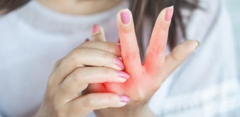 Neue Corona-Symptome: Flecken und wunde Stellen an Händen und Füßen