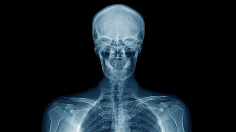 Eltern ahnen nichts: Röntgenbild ihrer Tochter bringt Geheimnis ans Licht