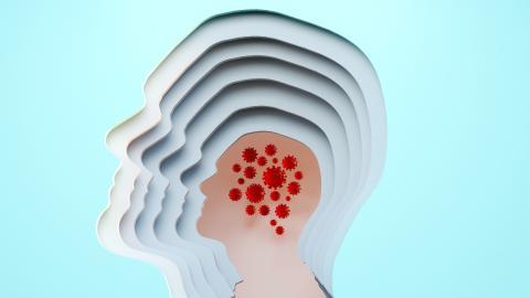 Neuro-COVID: 2 Faktoren begünstigen diesen gefährlichen Krankheitsverlauf