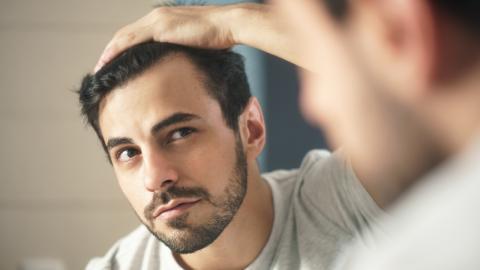 Haarausfall: Diese Gründe können dahinter stecken!