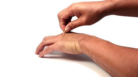Mit diesem simplen Trick erkennst du, ob du dehydriert bist