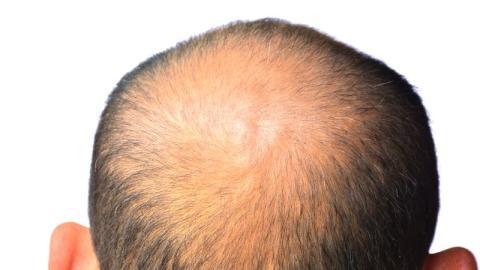 Diese neue Technik soll es ermöglichen, Haarausfall zu bekämpfen