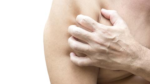Ein Mann klagt über Fieber, dann verliert er ein Viertel seiner Haut
