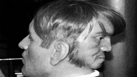 Die schreckliche Geschichte von Edward Mordrake, dem Mann mit den zwei Gesichtern